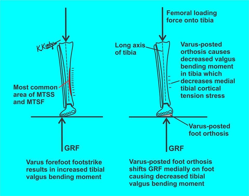 MTSS - Shin splints - afbeelding over hoe zolen werken