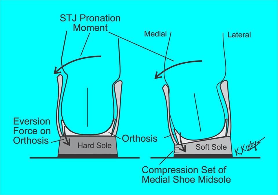 Schuinlopen van schoenen - pronatie