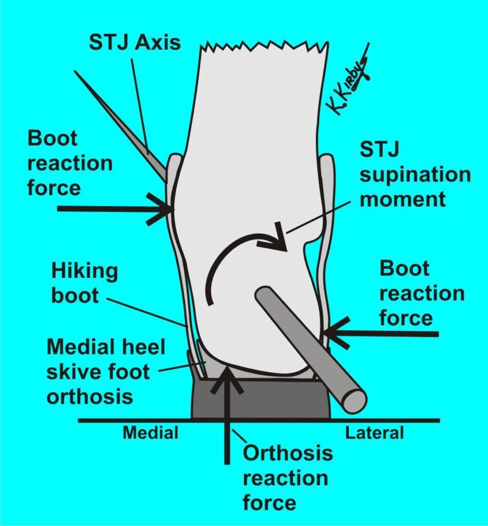 Medial heel skive voor bvb tib posterior tendinitis