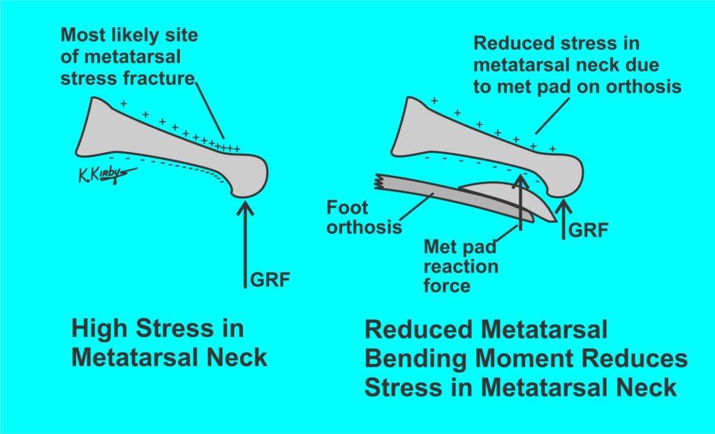 Stressfracturen of overbelasting thv metatarsalen - RCTB helpt