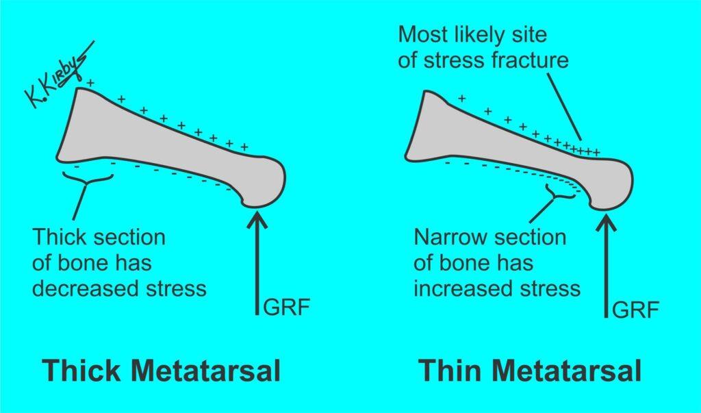 Stressfracturen of overbelasting thv metatarsalen dunne vs dikke metatarsaal