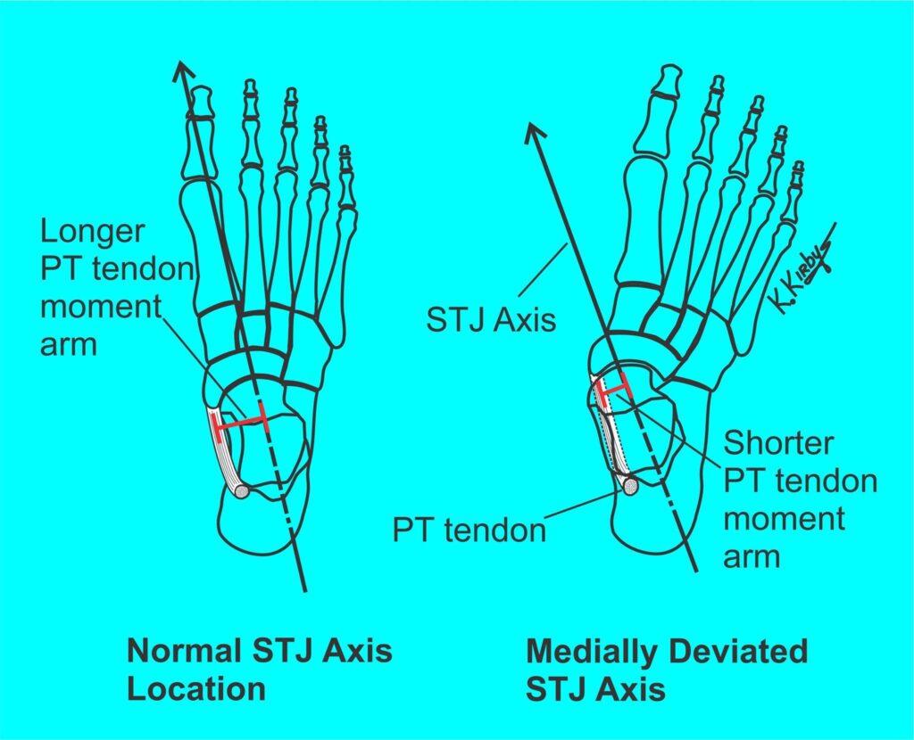 Tib posterior - momentarm bij mediaal gedevieerde STJ axis